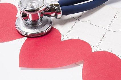 Herzrhythmusstörung EKG