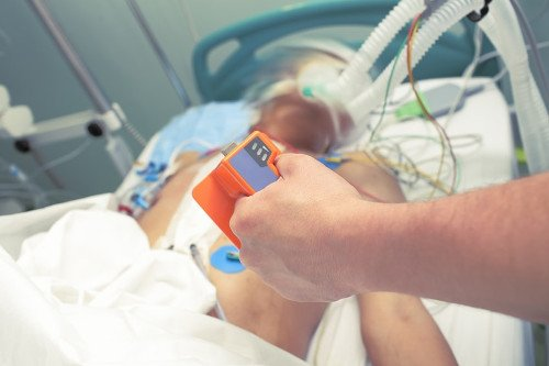 Arzt hält ein Elektroden für eine Kardioversion in Händen.