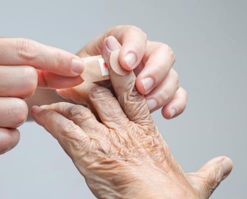 Orale Antikoagulation: Entwarnung bei leichten Blutungen