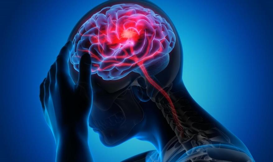 VHF und Hirnblutung: Sollte die orale Antikoagulation fortgesetzt werden?