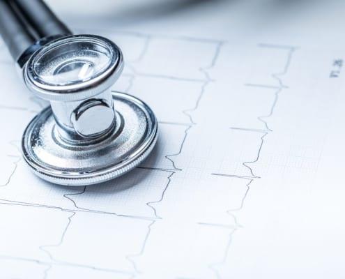 Kryptogener Schlaganfall: bessere Versorgung durch richtiges Monitoring
