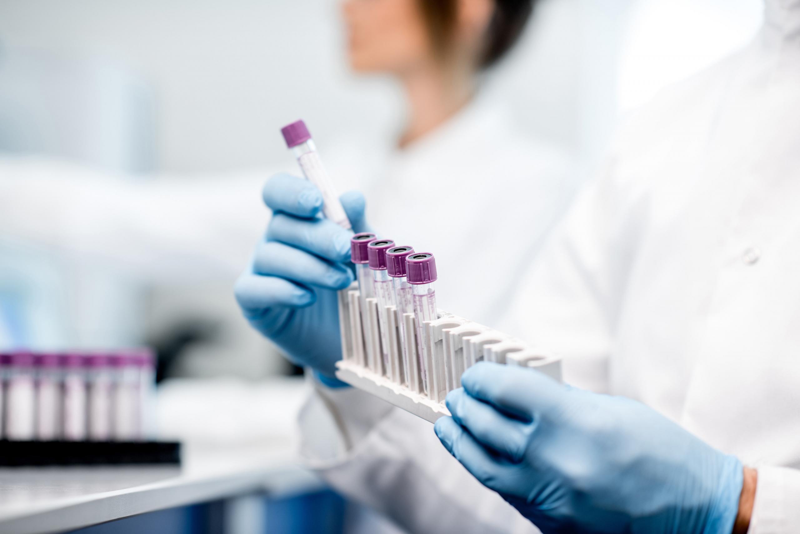 FGF-23 als Biomarker für Vorhofflimmern bestätigt